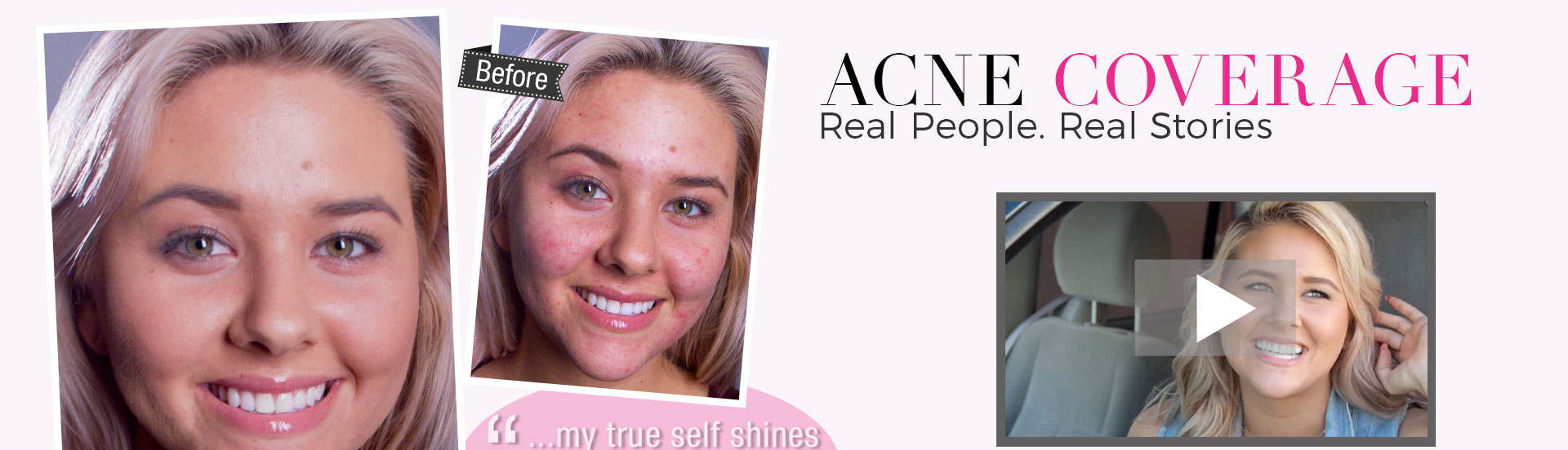 Acne Coverage - Learn More