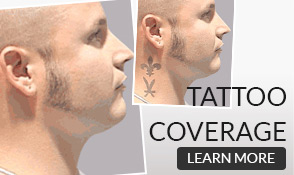Tatto Coverage - Buy Now